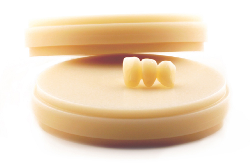 Metallfreier Zahnersatz: Rinovo Bio.line von Rißmann ermöglicht eine bessere Lebensqualität.