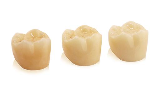 Die Produktlinie Mono.line von Rißmann Zahntechnik steht für monolithischen festsitzenden Zahnersatz. Die Basis dafür ist Ri.BruxR, ein modernes Zirkonoxid.
