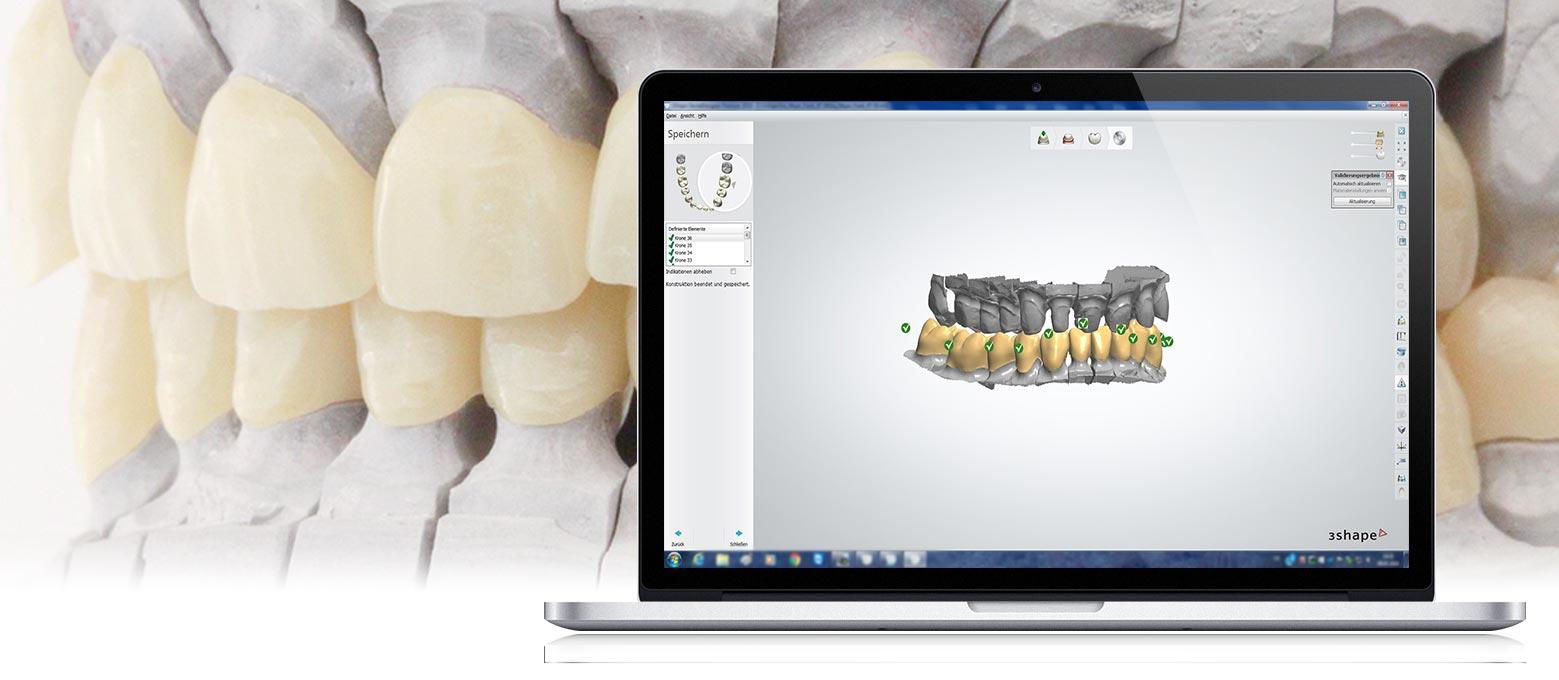3D-Druck bei Zahnersatz: Mit der CAD-CAM-Technologie unterstützt Rißmann den digitalen Workflow bei der Fertigung von Zahnersatz.