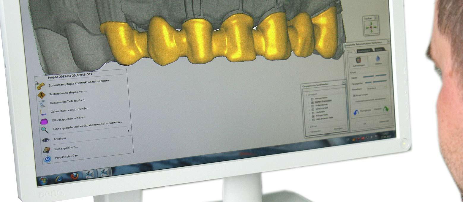 Implantatprothetik: Bei der Implantatplanung unterstützt Rißmann Zahnärzte mit der modernen Implantatplanungssoftware codiagnostix.