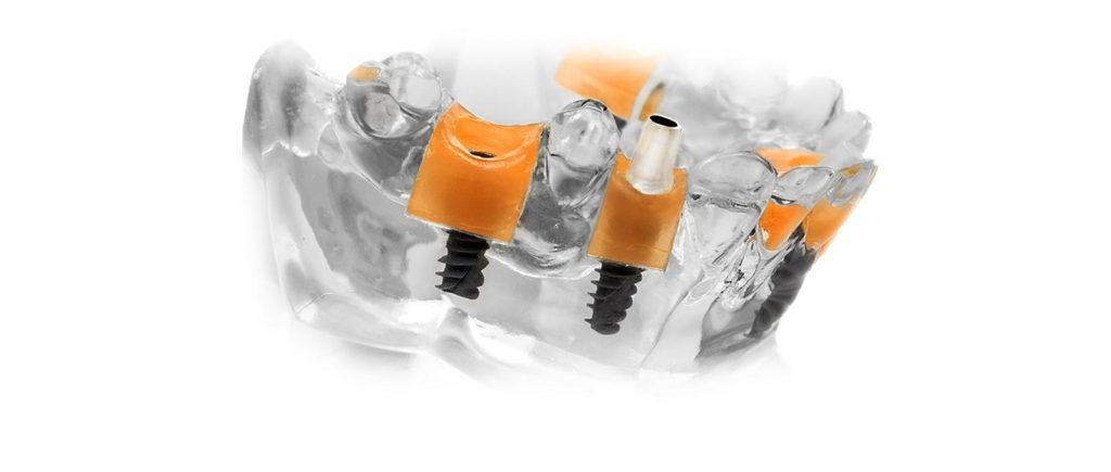 Das Modell zur Zahnersatzherstellung zeigt: Ein Implantat von Rißmann Zahntechnik ersetzt fehlende Zähne optimal.