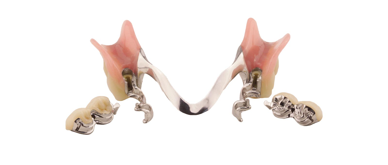 Ob Kombinationsprothese oder Teilprothese: Kombinationsprothetik von Rißmann Zahntechnik ist ein anspruchsvoller Zahnersatz.