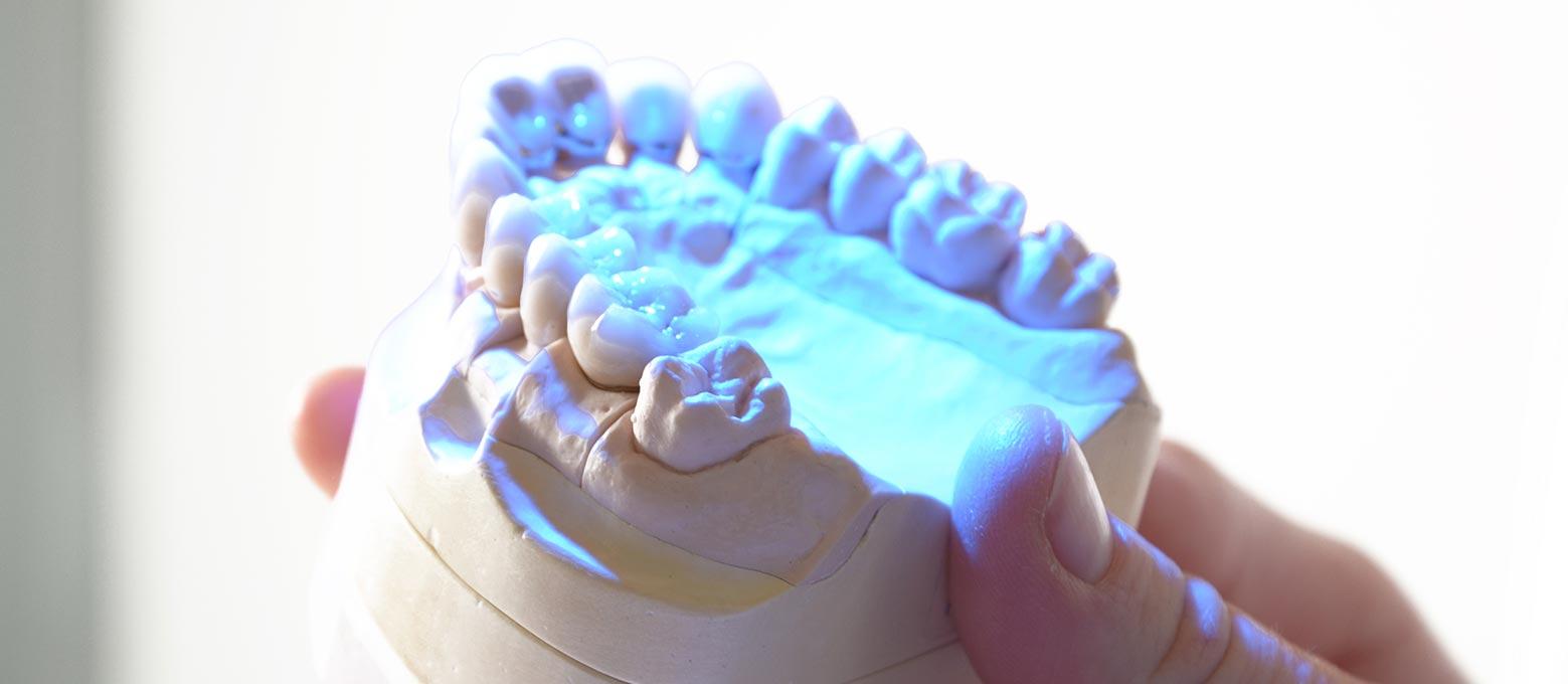 Moderne Zahntechnik: Die Zahnersatz-Herstellung im Rißmann Zahntechnik Labor umfasst das gesamte Spektrum.