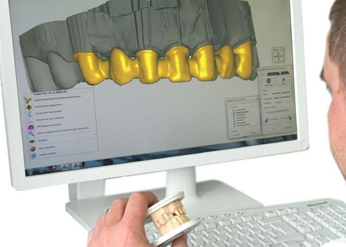 Digitaler Workflow bei Rißmann Zahntechnik: Die Herstellung der physischen Modelle erfolgt in digitaler Handarbeit.