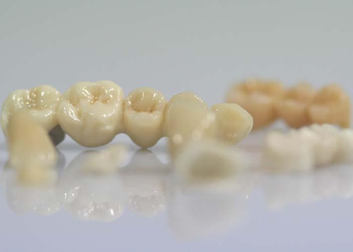 Digitaler Workflow bei Rißmann Zahntechnik: Der Zahnersatz wird in nur wenigen Schritten fertiggestellt.
