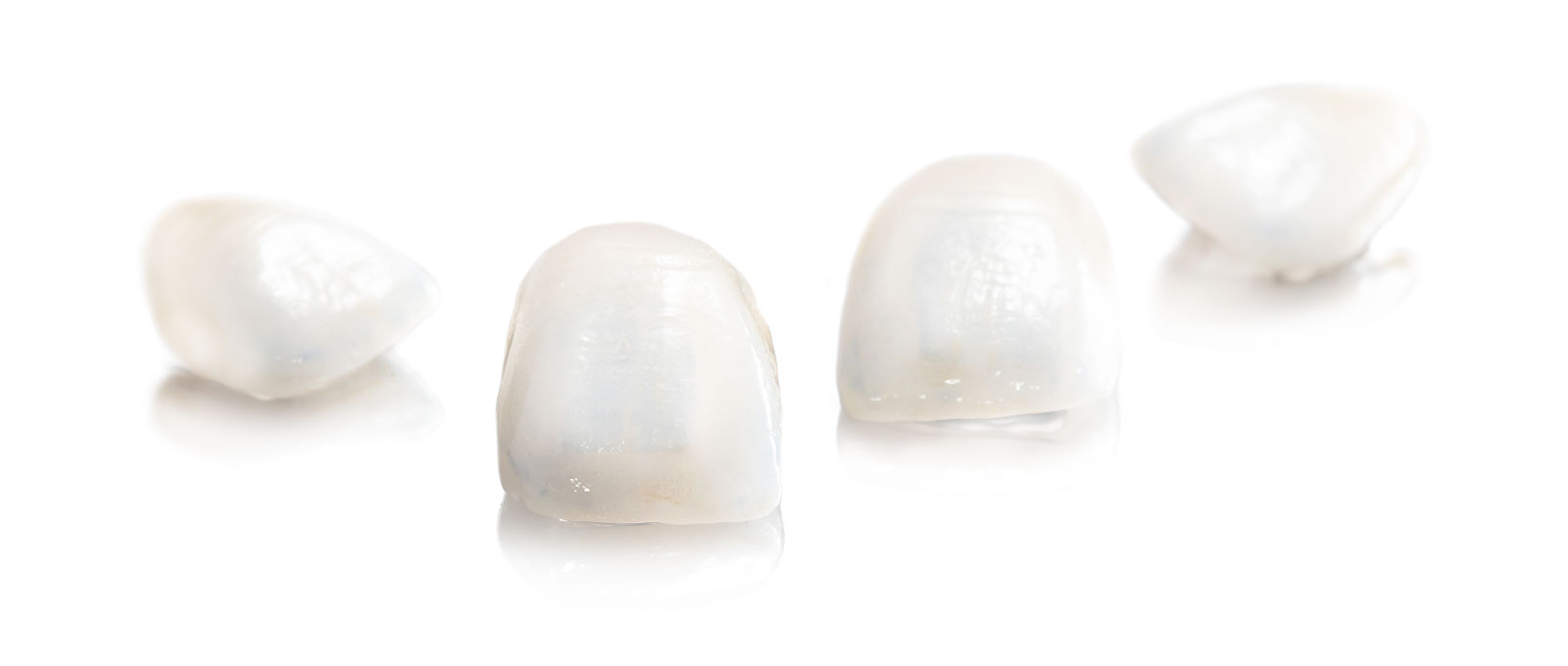 Zahnersatz-Herstellung: Inlay und Veneer von Rißmann Zahntechnik in Großaufnahme